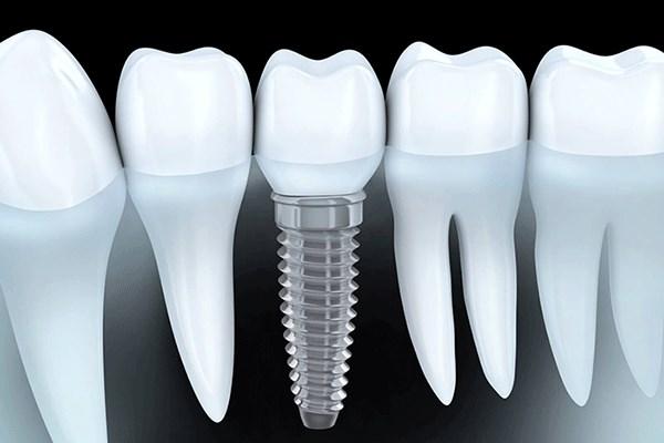 nhung-loai-rang-implant-pho-bien-1